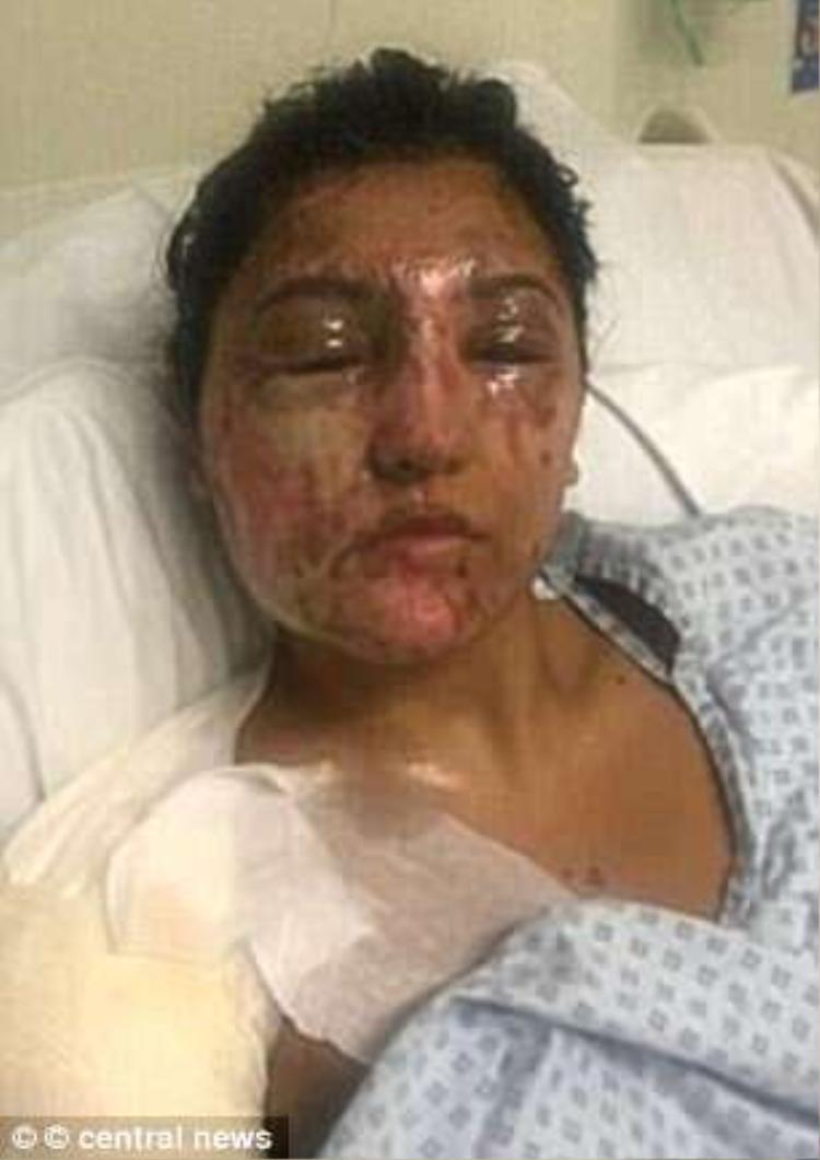 Khuôn mặt của Resham đã bị hủy hoại nghiêm trọng sau vụ tấn công.