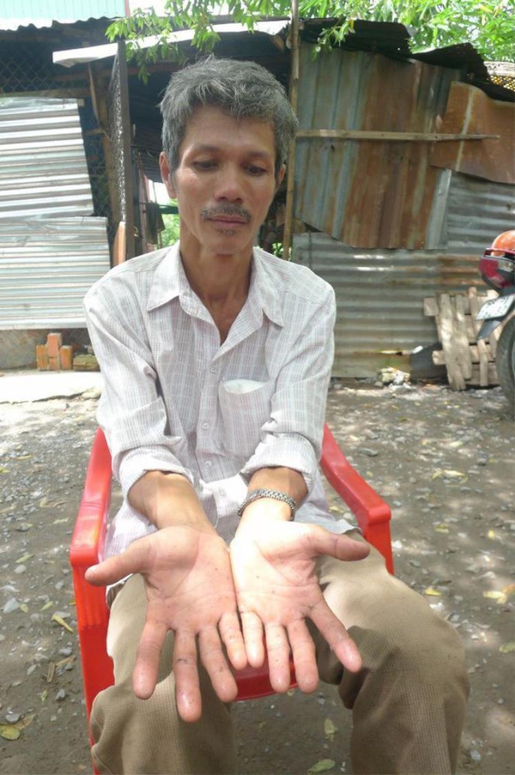 Bàn tay ông Lân đầy những vết xước do băng rừng. Ảnh: Tiền Phong.