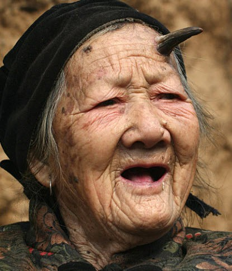 """Bà Zhang Ruifang và chiếc sừng """"quỷ"""" của mình."""