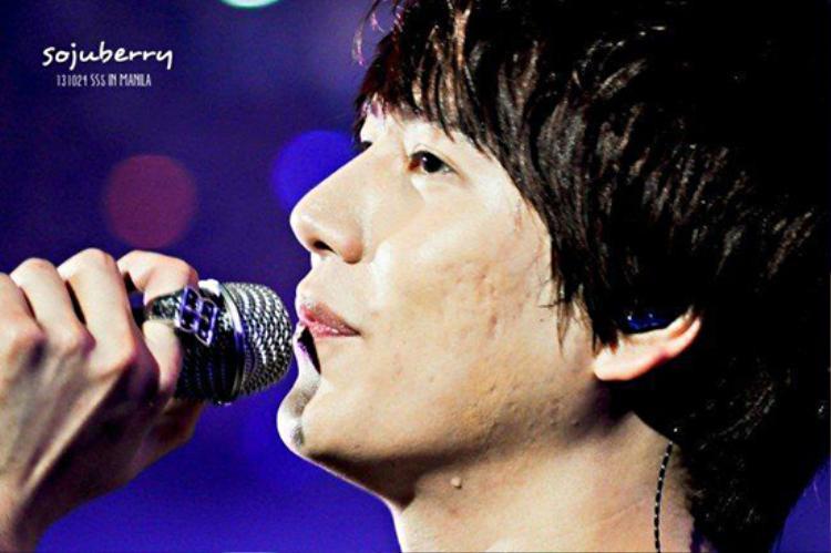 Phần mụn và sẹo rỗ trên gương mặt Kyuhyun (Super Junior) hiện khá rõ dưới ánh đèn sân khấu.
