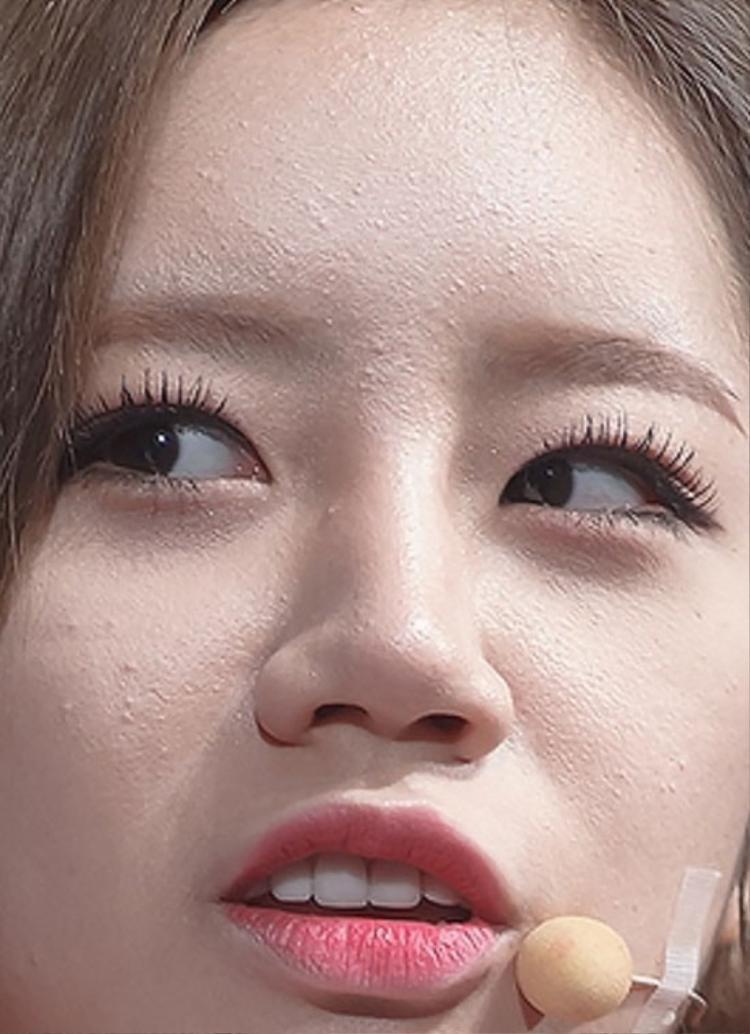 Hay cô nàng Hyeri (Girl's Day) với nhiều đốm mụn ẩn trên khắp khuôn mặt dù đã được cố gắng che lấp bởi phấn trang điểm.