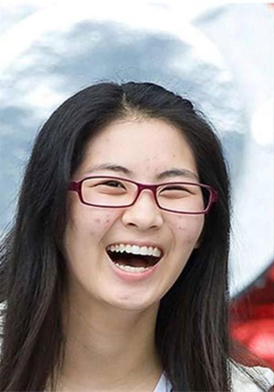 Có ai dám tin đây là làn da của cô nàng xinh đẹp Seohyun trong nhóm SNSD.