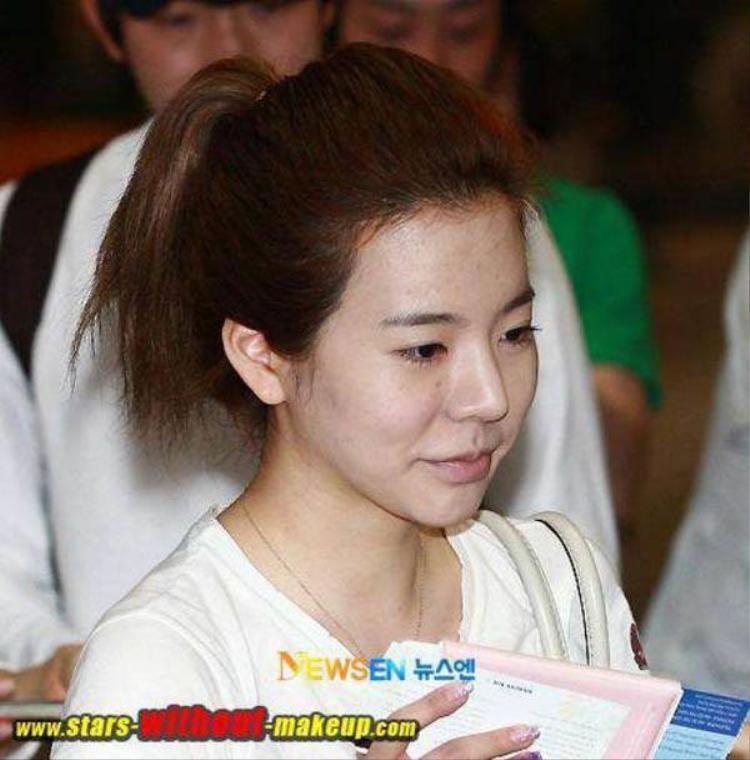 Gương mặt mệt mỏi với nhiều đốm mụn mẩn đỏ và vết thâm của Sunny.