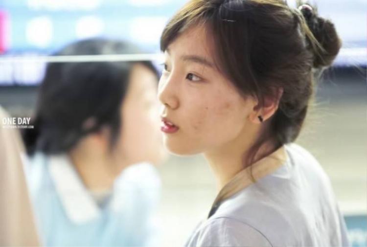 Ngay cả cô nàng Taeyeon cũng từng khá đau đầu khi bỗng xuất hiện nhiều đốm thâm mụn.