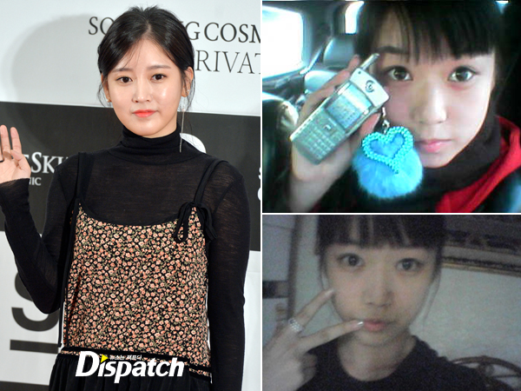 """Thành viên T-ara từng thừa nhận tiêm mũi, tuy nhiên người hâm mộ lại cho rằng Soyeon đã """"đại tu"""" cả khuôn mặt chứ không chỉ đơn giản là sửa mũi."""