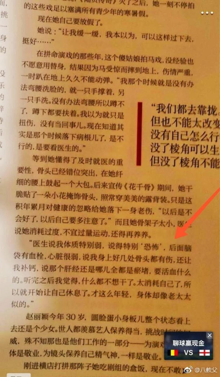 Studio bất ngờ phủ nhận việc Triệu Lệ Dĩnh bị thương nặng vì tai nạn phim trường, sự thật là thế nào?