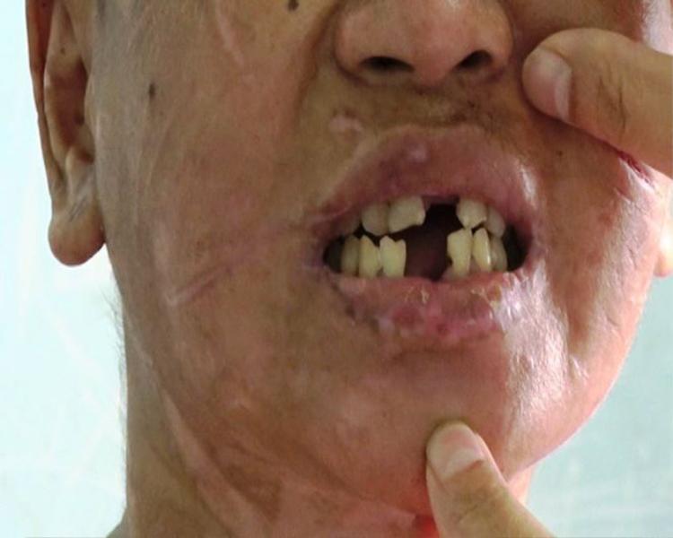 Nạn nhân bị chủ nhà dùng kìm bẻ gãy răng. Ảnh: Tiền Phong.