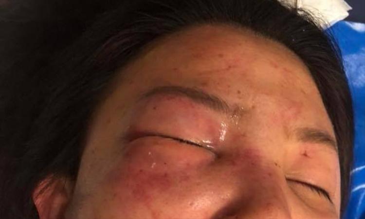 Vết thương kinh hoàng trên gương mặt cô gái trẻ
