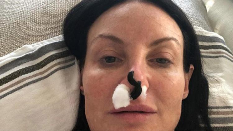 Shari quyết định chọn phương pháp để đỉa hút hết máu tích tụ trên mũi. Ảnh: The Sun