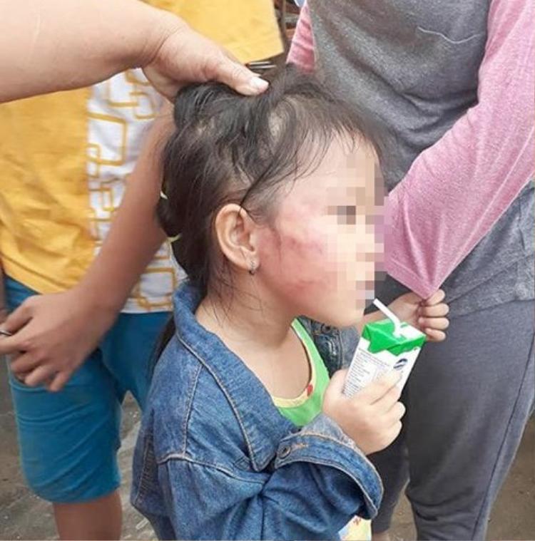 Bên má của bé gái bị bầm tím. Ảnh: Infonet.