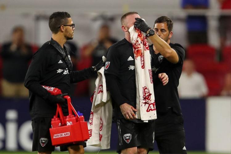 Rooney được các bác sĩ chăm sóc.