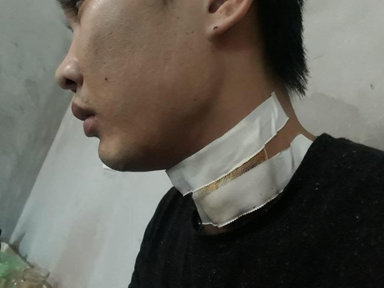 Anh T. bị nghi phạm đi xe taxi cứa vào cổ.
