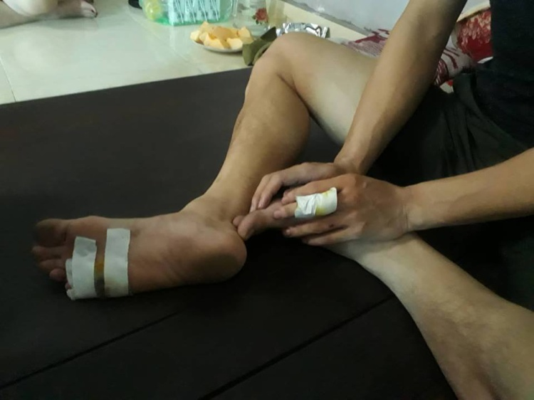Một số thương tích ở tay, chân anh T.