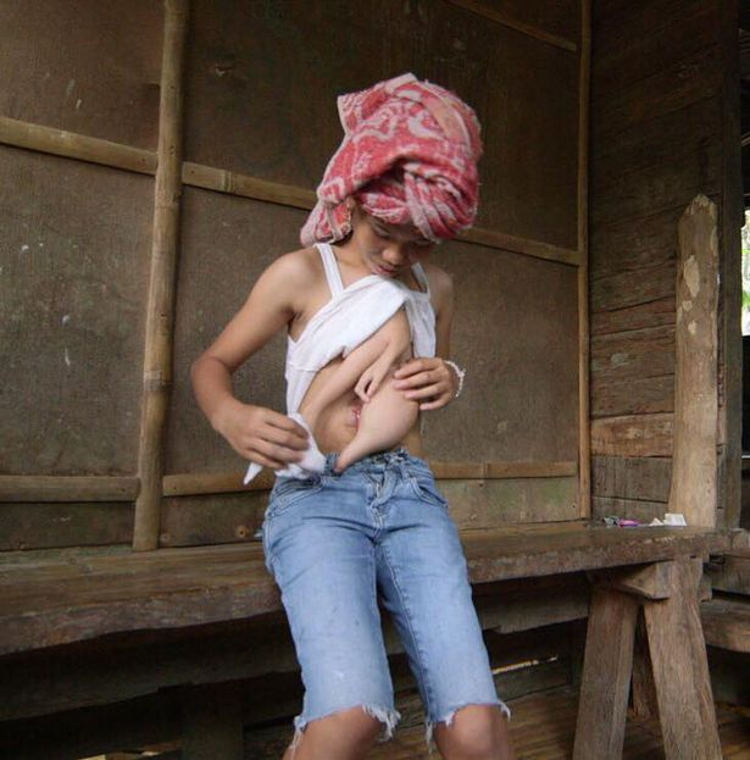 Cô bé 14 tuổi sẽ được phẫu thuật để loại bỏ hai cánh tay thừa.