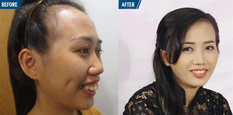 Hình ảnh thực tế của Thúy Viên trước và sau phẫu thuật.