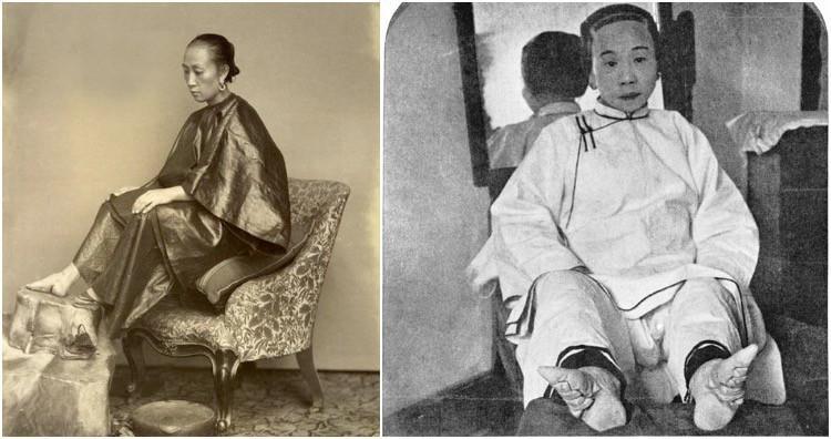 Tục bó chân ở Trung Quốc gần như đã trở thành một nét truyền thống của phụ nữ đất nước này trong suốt thời phong kiến.