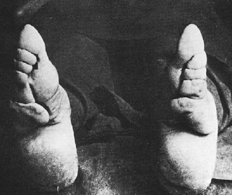 Bó chân bắt đầu từ khi bé gái từ 2 - 5 tuổi.