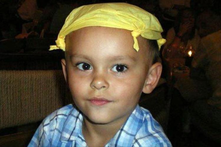 Shaun 3 tuổi rưỡi trước khi mức hội chứngLipodystrophy. Ảnh: Platform Press