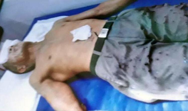 Nạn nhân bị bỏng nặng phải nhập viện cấp cứu.