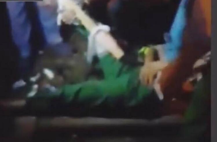 Hình ảnh nữ công nhân bị tông gãy cổ chân.