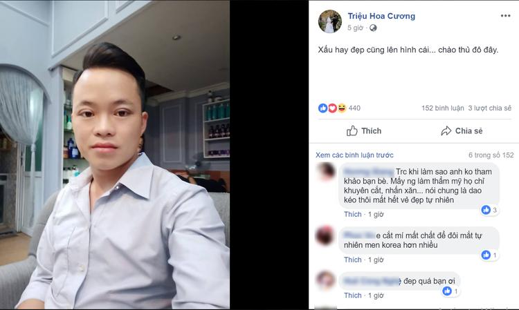 Tối cùng ngày, anh Hoa Cương cũng chia sẻ trên trang cá nhân của mình hình ảnh mình vừa nhấn mí khiến nhiều người bất ngờ với diện mạo thay đổi khá nhiều của chú rể 26 tuổi.