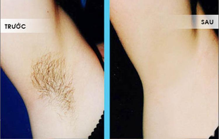 Có thể bạn chưa biết: Lông nách, lông chân tay sẽ một đi không trở lại với công thức từ chanh
