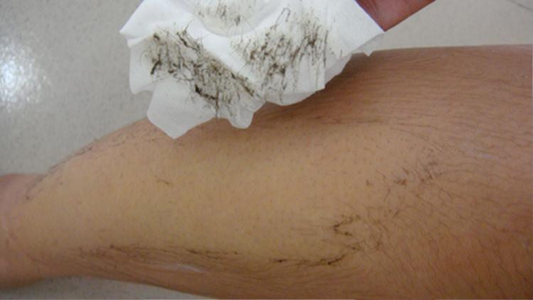 Dùng bông tẩy trang lau lên vùng da vừa tẩy