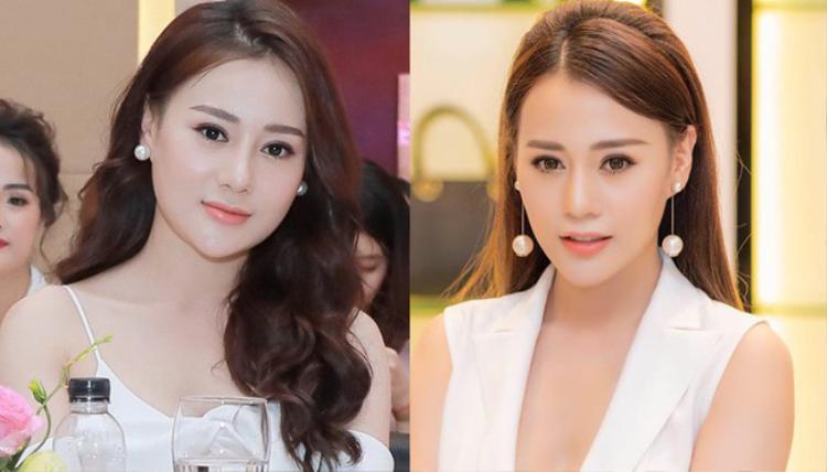 Bên trái là ảnh gương mặt sưng phù của Phương Oanh sau khi can thiệp thẩm mỹ.