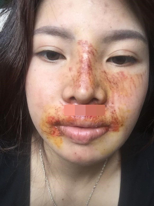 The scratched face image causes many people to worry.
