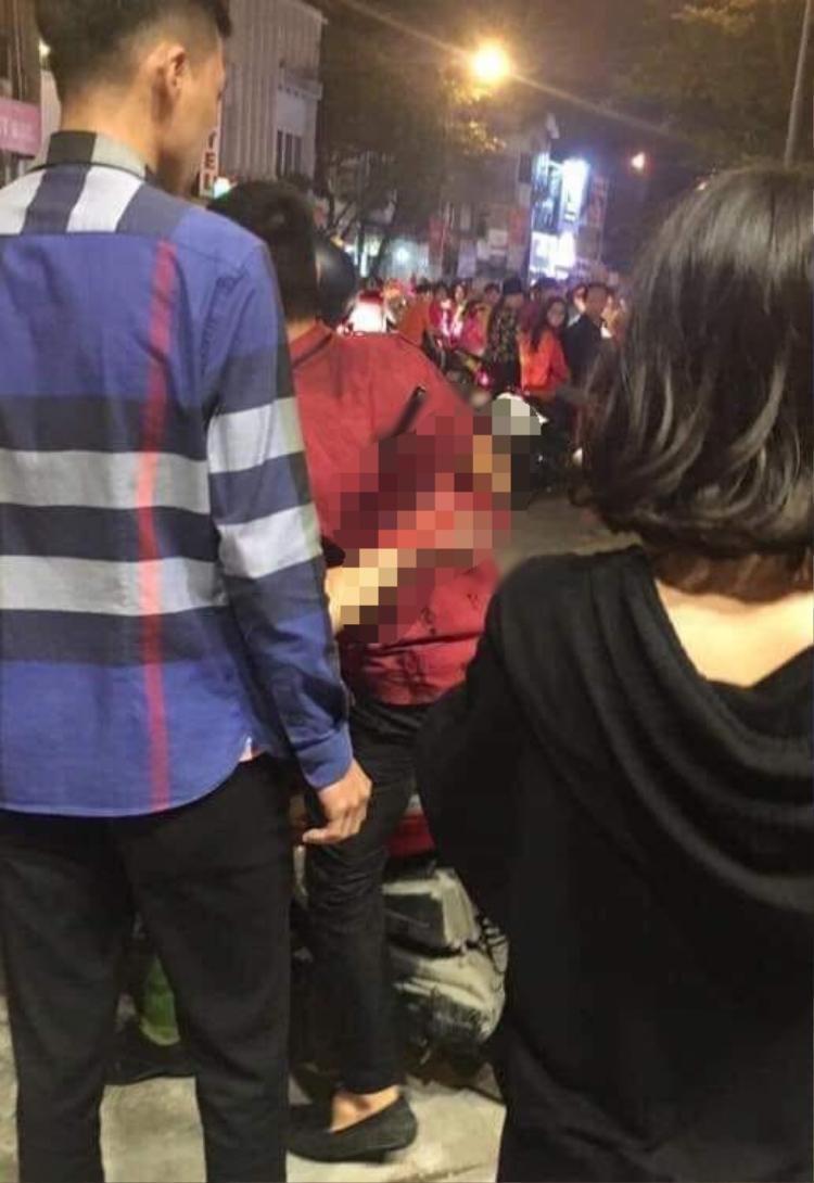 Hình ảnh nam thanh niên bị dao đâm vẫn còn dính trên lưng sau vụ ẩu đả.