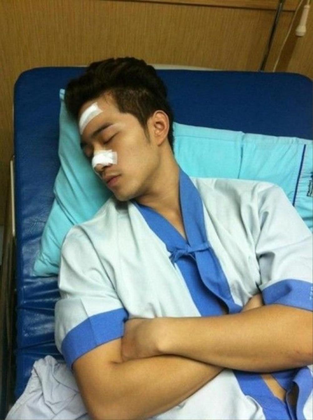 Nam diễn viên từng bị cướp tấn công đến gãy mũi.