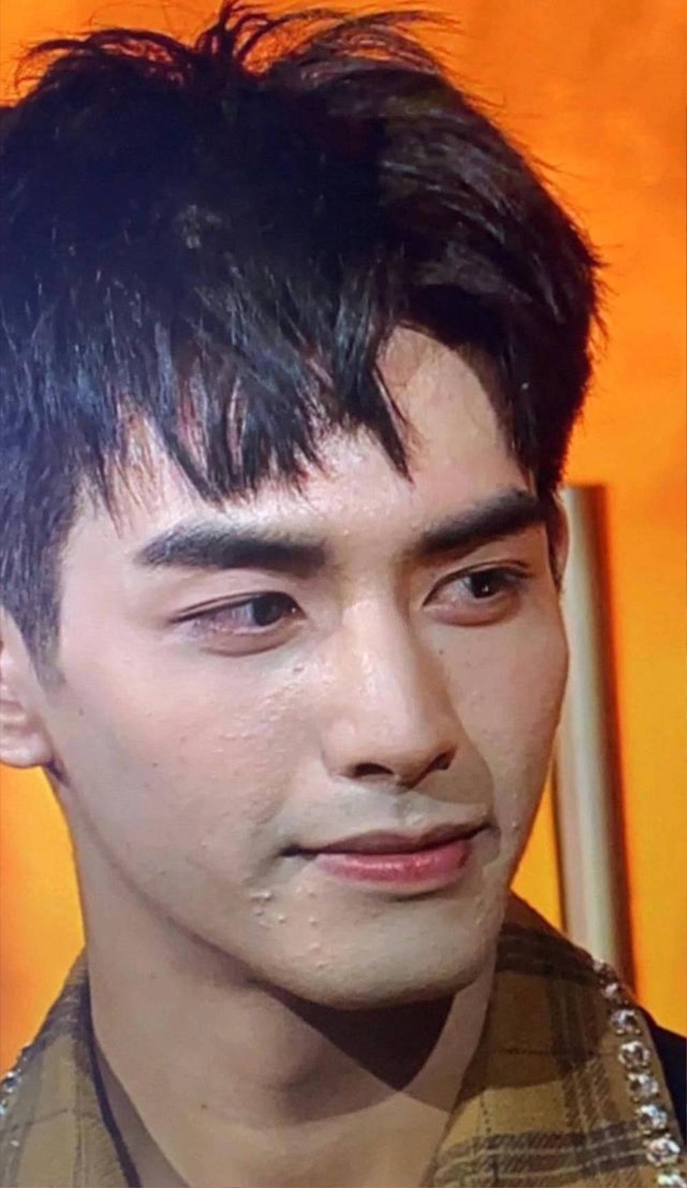 Tống Uy Long lên tiếng giải thích về làn da xấu, nổi đầy mụn của mình Ảnh 6