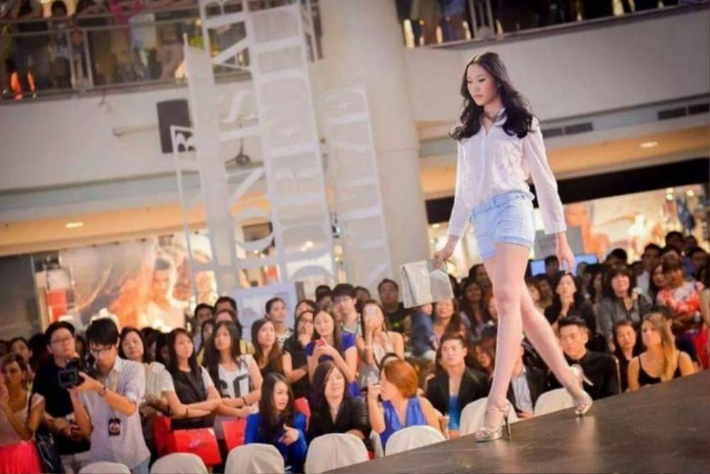 Nữ người mẫu 23 tuổi tử vong sau khi hút mỡ cánh tay Ảnh 2