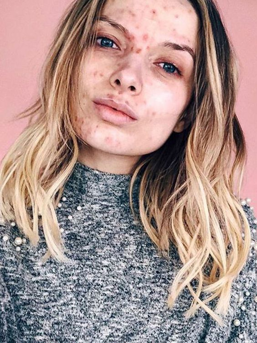 7 sản phẩm skincare quen thuộc có thể làm hỏng da của bạn Ảnh 2