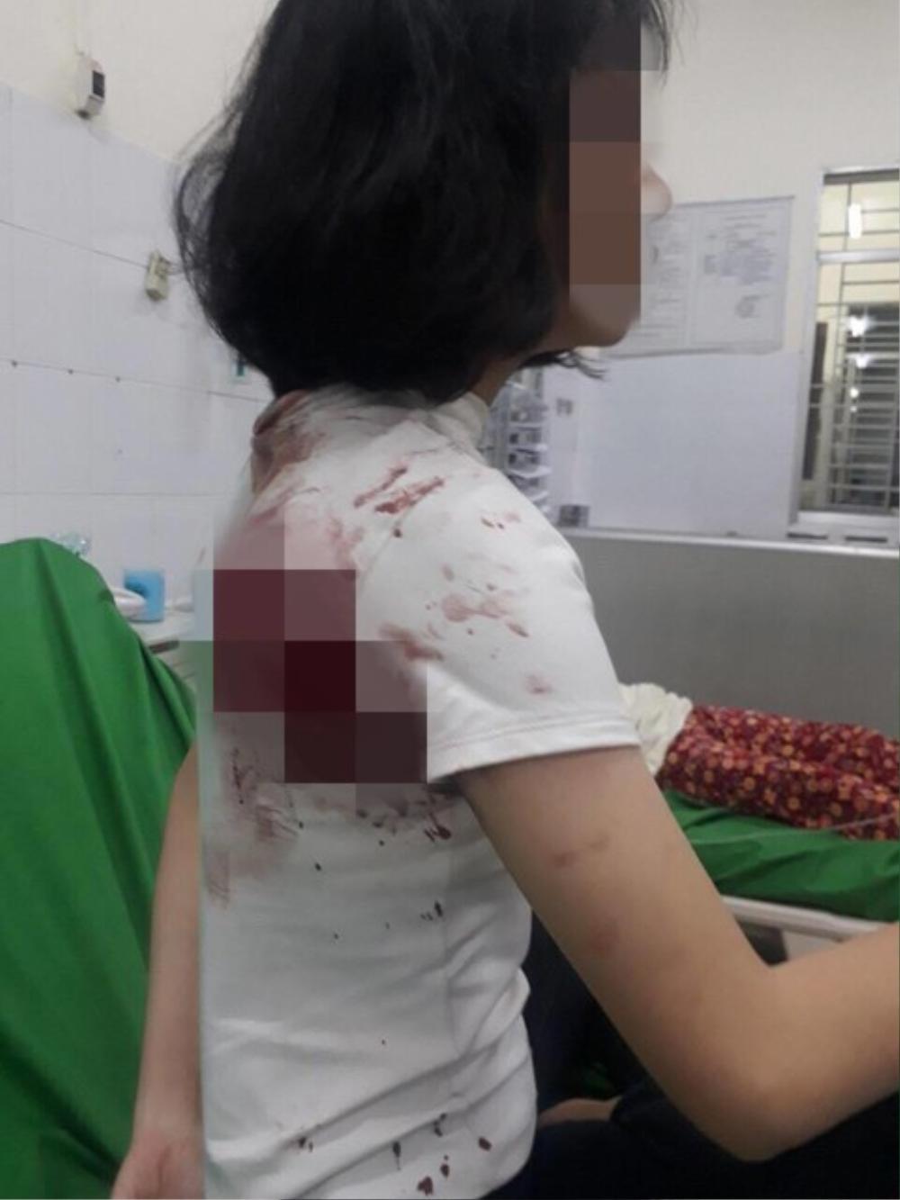 Nữ sinh lớp 11 bị đâm trọng thương do tranh giành khách mua hàng Ảnh 1