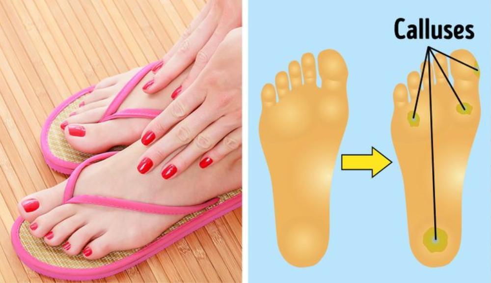 6 loại giày dép gây hại nghiêm trọng cho cơ thể nhưng ai cũng sở hữu Ảnh 2