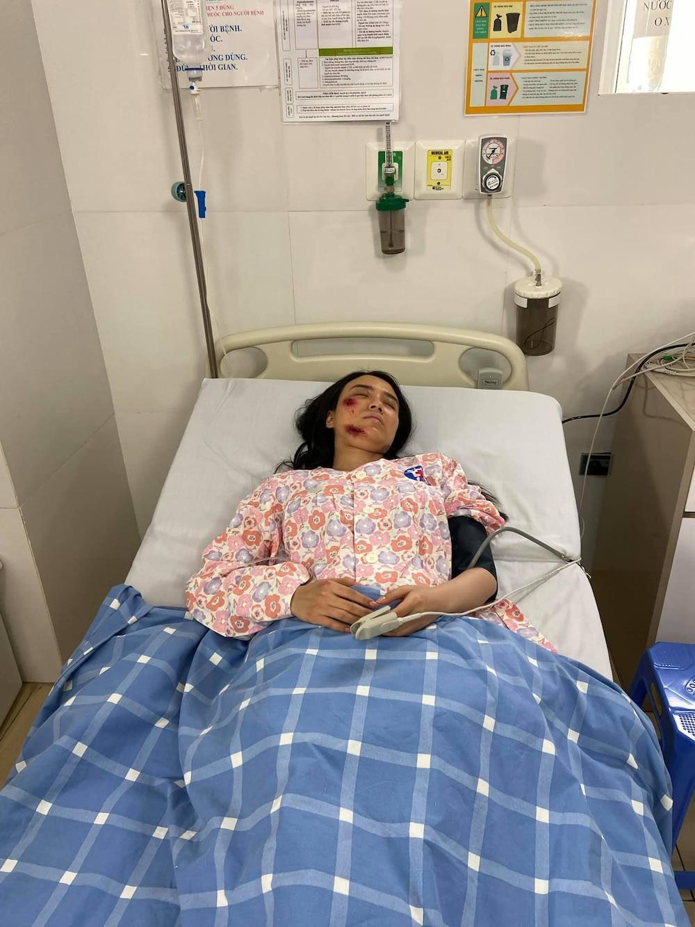 Hotgirl Linh Miu lên tiếng về bức ảnh bị thương và ồn ào phát ngôn phản cảm với NS Chí Tài Ảnh 3