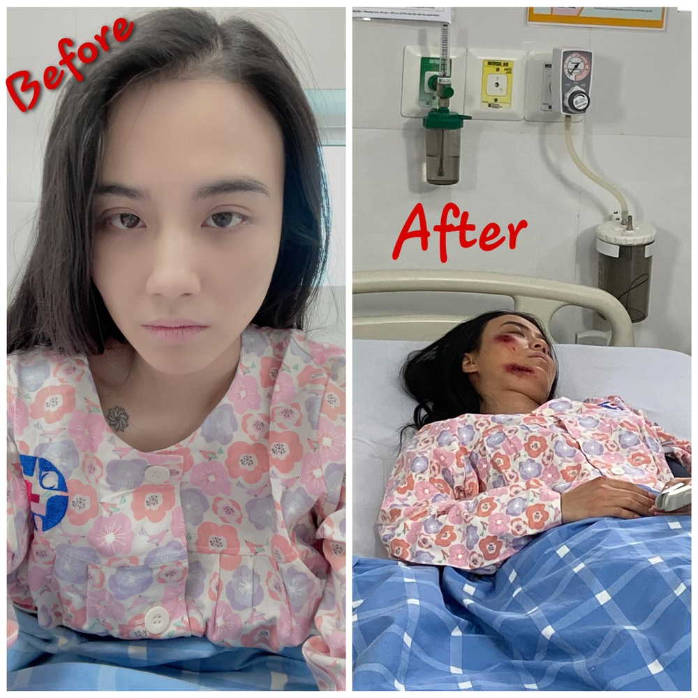Hotgirl Linh Miu lên tiếng về bức ảnh bị thương và ồn ào phát ngôn phản cảm với NS Chí Tài Ảnh 4