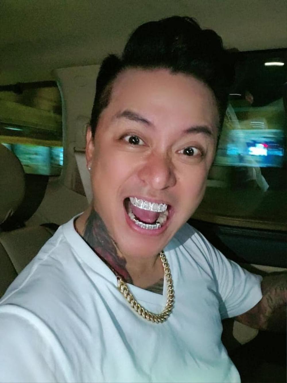 Tuấn Hưng chơi lớn khi tậu bộ răng kim cương bạc tỷ Ảnh 4