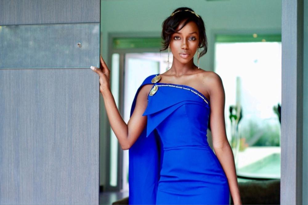 Hoa hậu Guinea đau khổ thất nghiệp 3 năm vì mụn trứng cá Ảnh 1