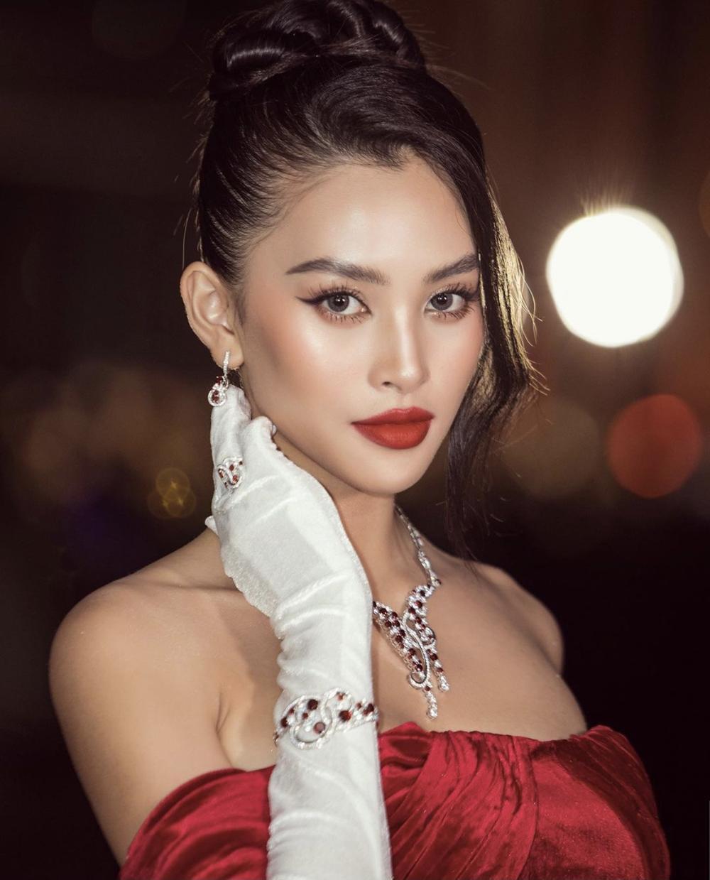 Hoa hậu Tiểu Vy và á hậu Thuý An lộ ảnh bị bầm khắp người khiến người hâm mộ xót xa Ảnh 6