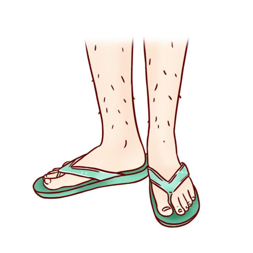 10 sai lầm chọn giày dép mùa hè khiến ngón chân biến dạng, sinh bệnh về khớp Ảnh 4