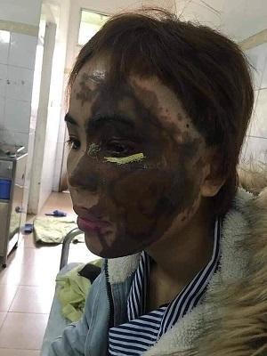 Gương mặt chị V. bị hủy hoại hoàn toàn.
