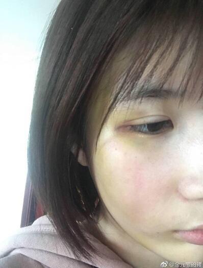 Sau thành công của Diên Hi công lược: Ngô Cẩn Ngôn  Hứa Khải bạo hồng, Tần Lam liên tục dính nghi án hẹn hò ảnh 9