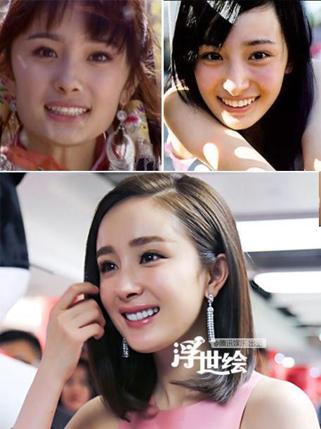Tương tự Angelababy, Dương Mịch từng dính nghi án phẫu thuật thẩm mỹ. Lý do là trước đó nữ diễn viên Tam sinh tam thế thập lý đào hoacó khuôn hàm khá vuông, hàm trước của cô cũng hơi hô, răng to bản. Sau đó, cô quyết định chỉnh lại răng và có được luôn mặt V-line ưng ý.