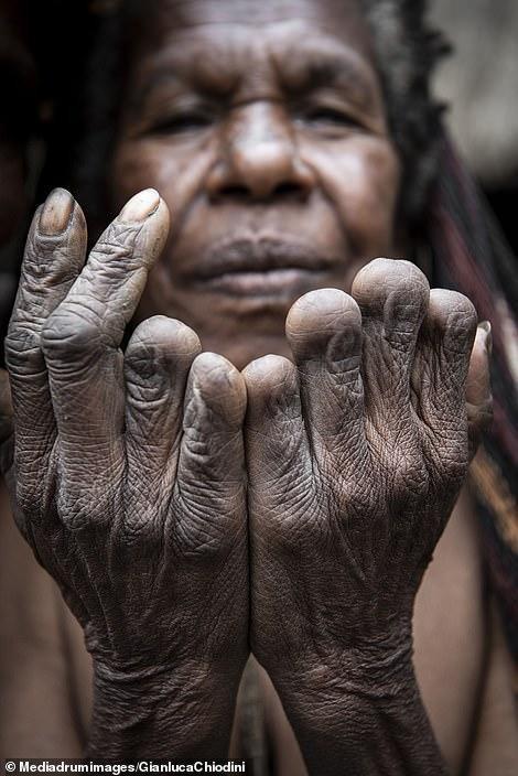 Bàn tay của một phụ nữ lớn tuổi. Có thể thấy bà đã mất đi 6 người thân của mình.