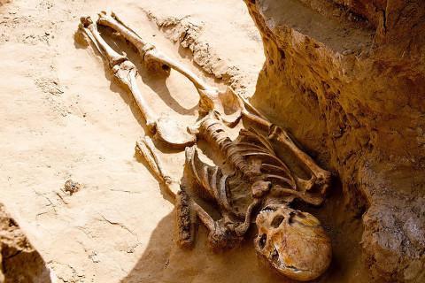 Bộ xương với hộp sọ bị biến dạng.