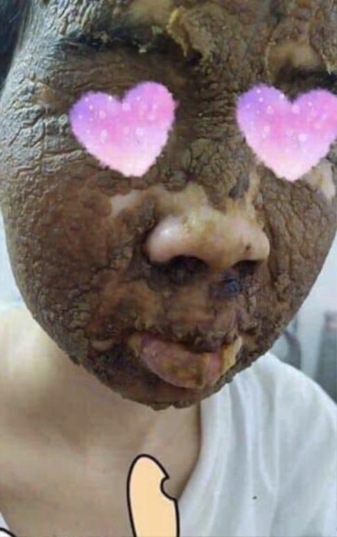 Chết khiếp với bức hình cô gái đắp mặt nạ rượu thuốc được tung hô như tiên dược ảnh 1