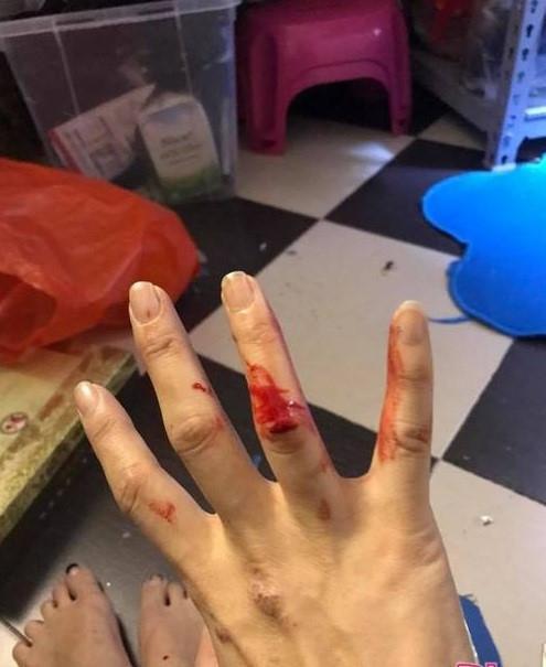 Bàn tay bị nghi là của Hồng Nhung vương máu