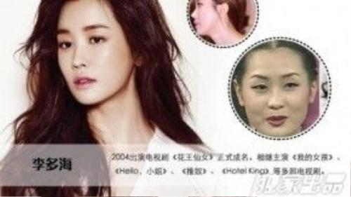 Lee Da Hae công khai thừa nhận mình đã phẫu thuật thẩm mỹ nhiều lần để có dung nhan mỹ miều hiện tại. Bức ảnh chụp khi cô tham dự cuộc thi Miss Chun Hyang 2001 tiết lộ dung nhan 'thật' của Lee Da Hae.